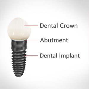 Dental Implants Surgery Edison