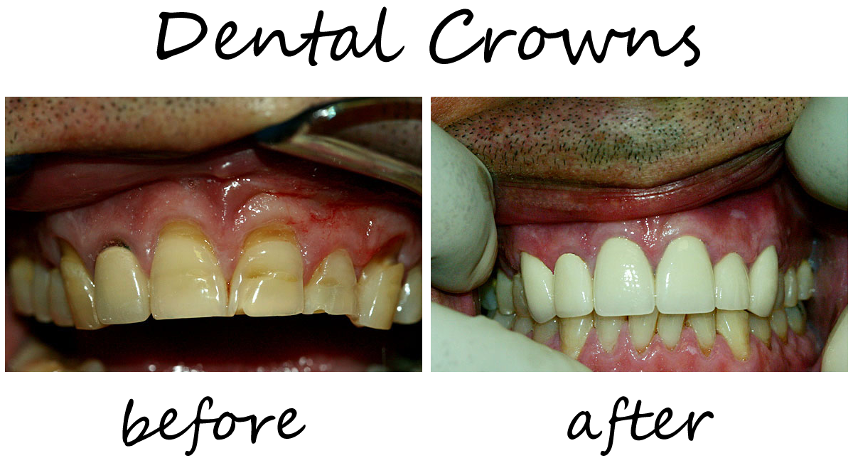 Dental Crowns Before-After 1