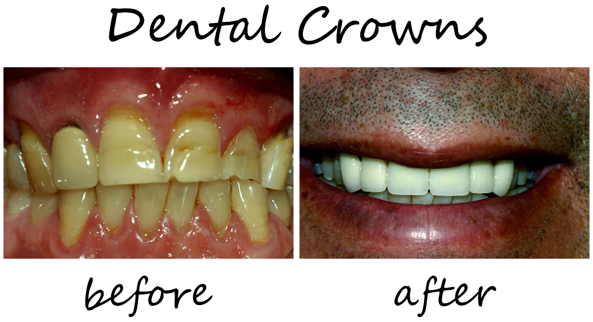 Dental Crowns Before-After 2