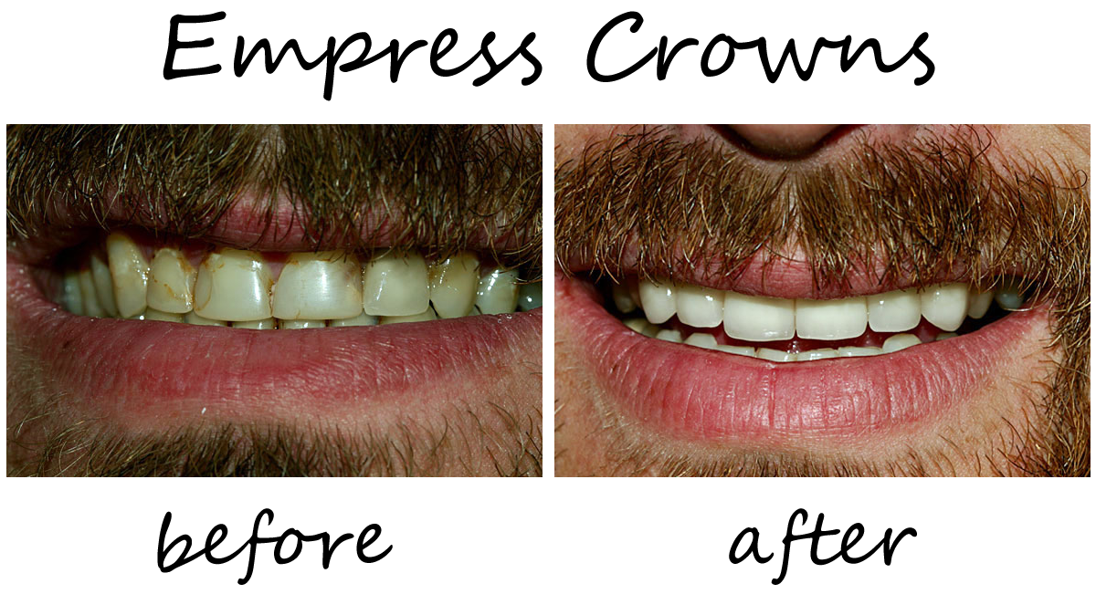 Dental Crowns Before-After 3