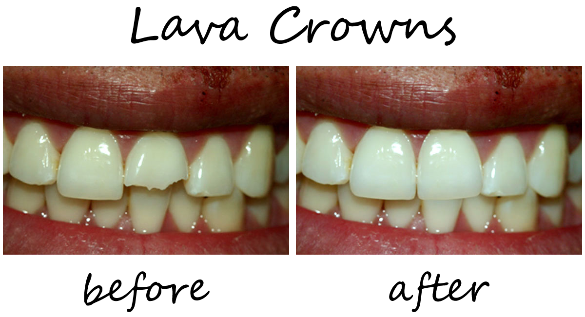 Dental Crowns Before-After 4
