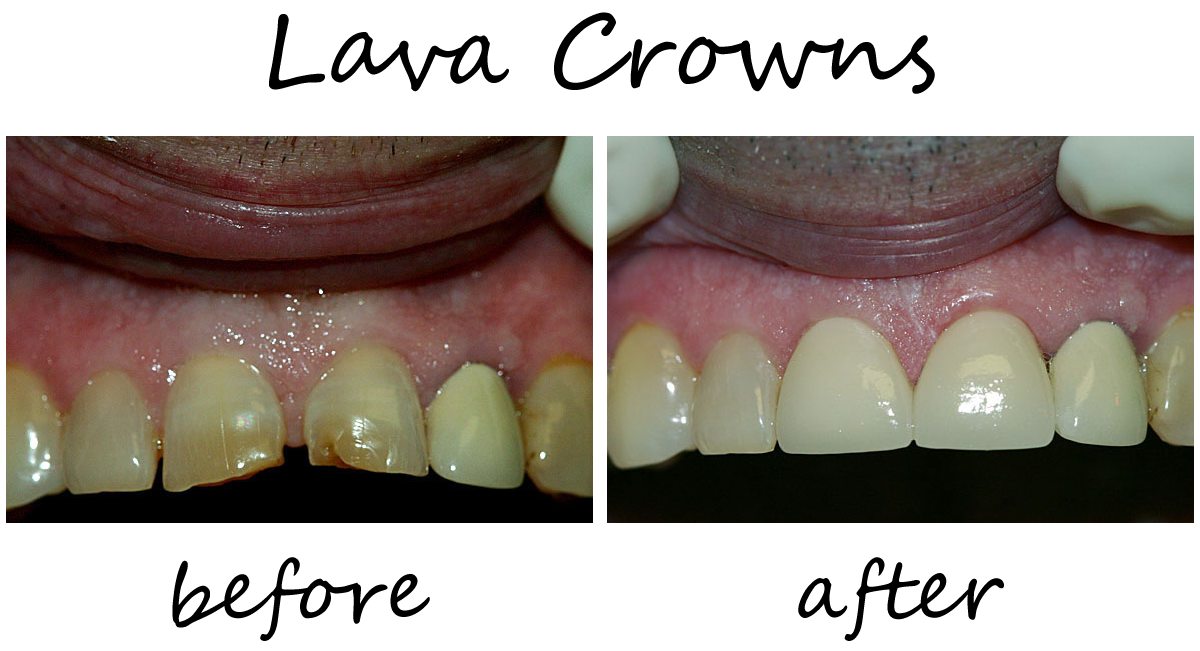 Dental Crowns Before-After 5