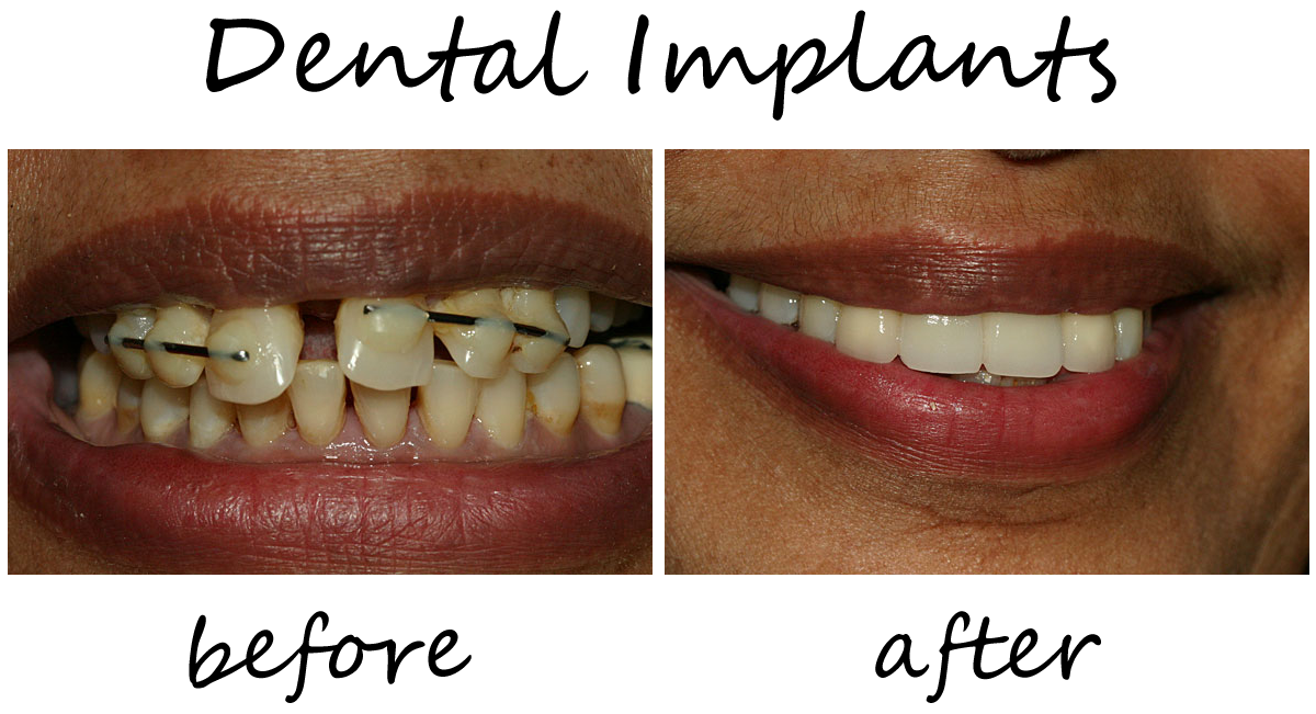 Dental Implants Before-After 1