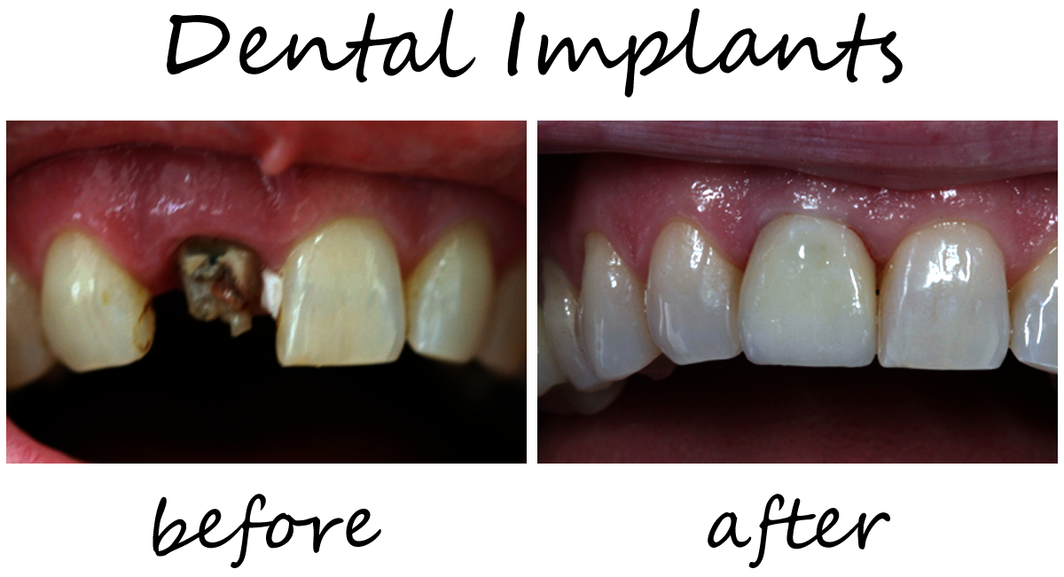 Dental Implants Before-After 2