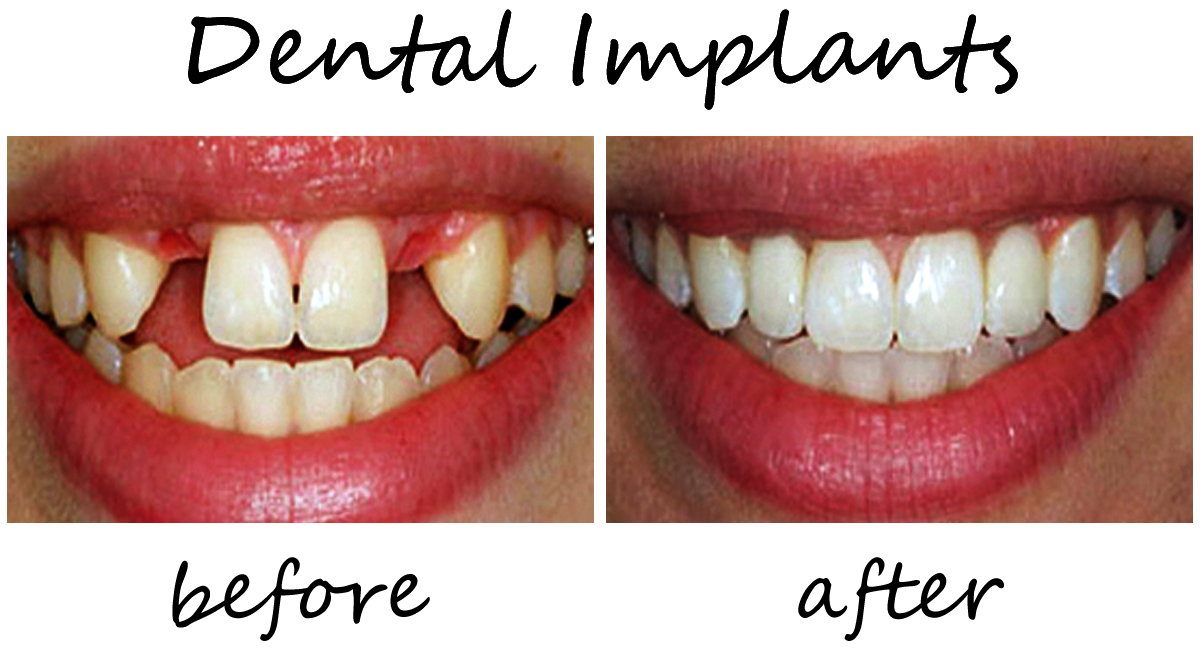 Dental Implants Before-After 3
