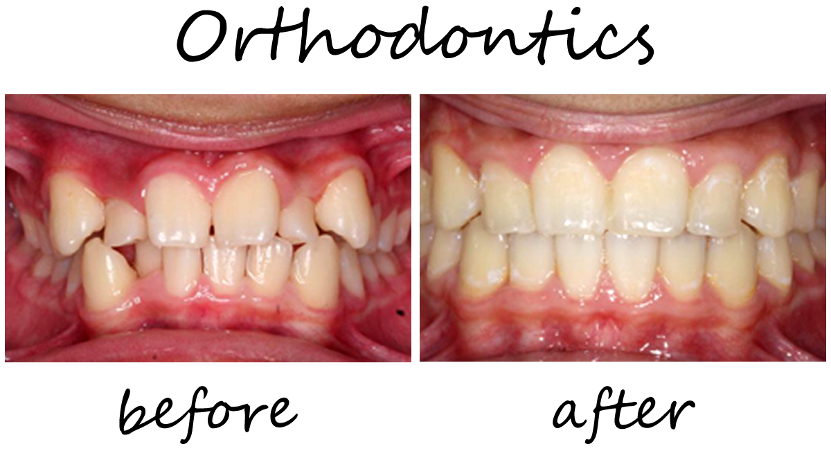 Orthodontics Before-After 1