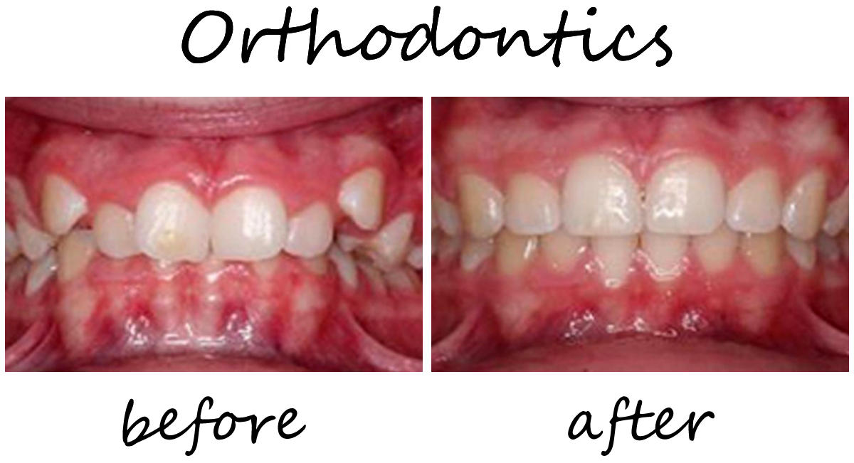 Orthodontics Before-After 2