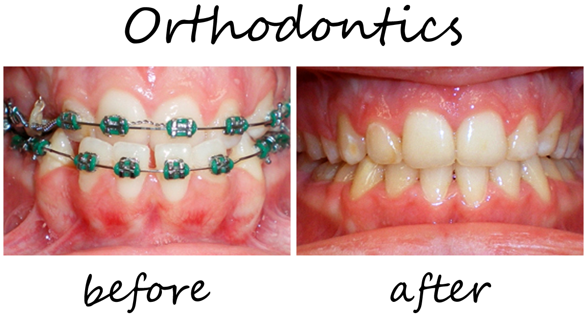 Orthodontics Before-After 3