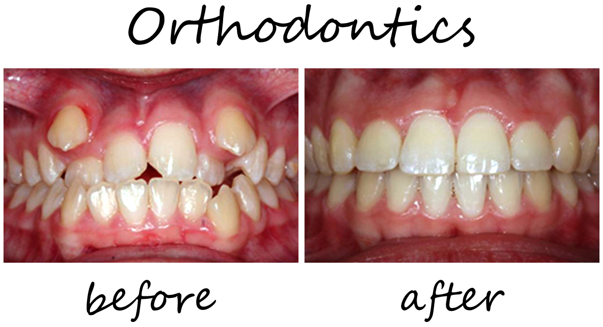 Orthodontics Before-After 4