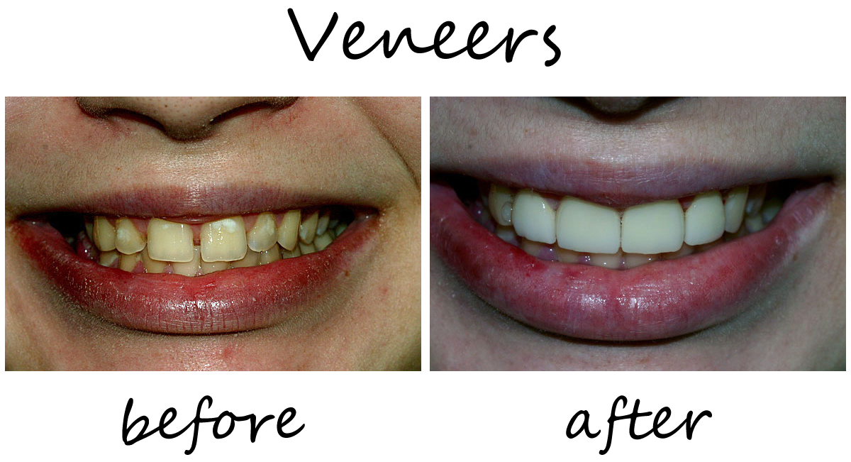 Veneers Before-After 1