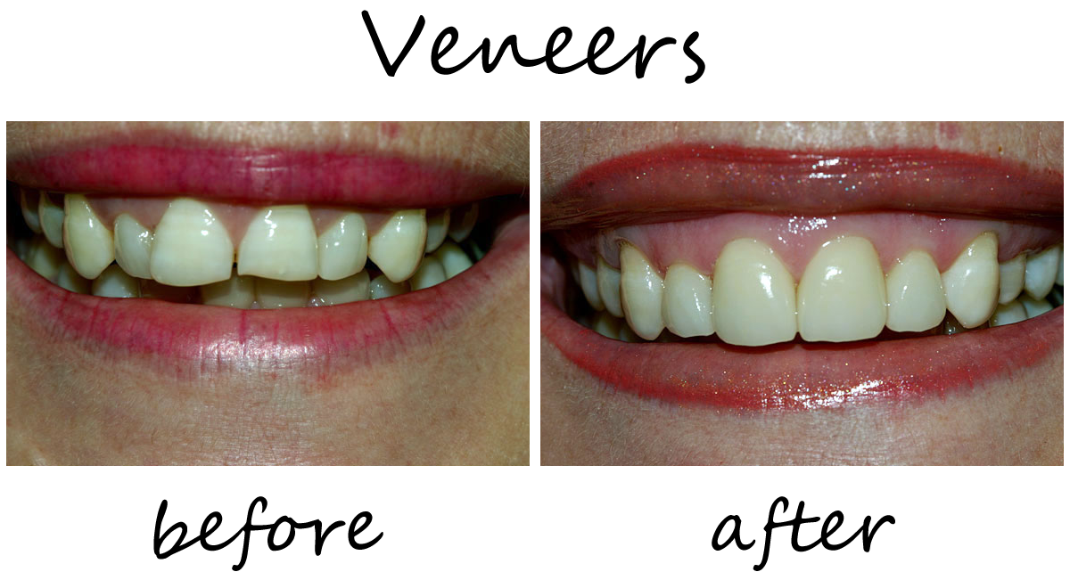 Veneers Before-After 2