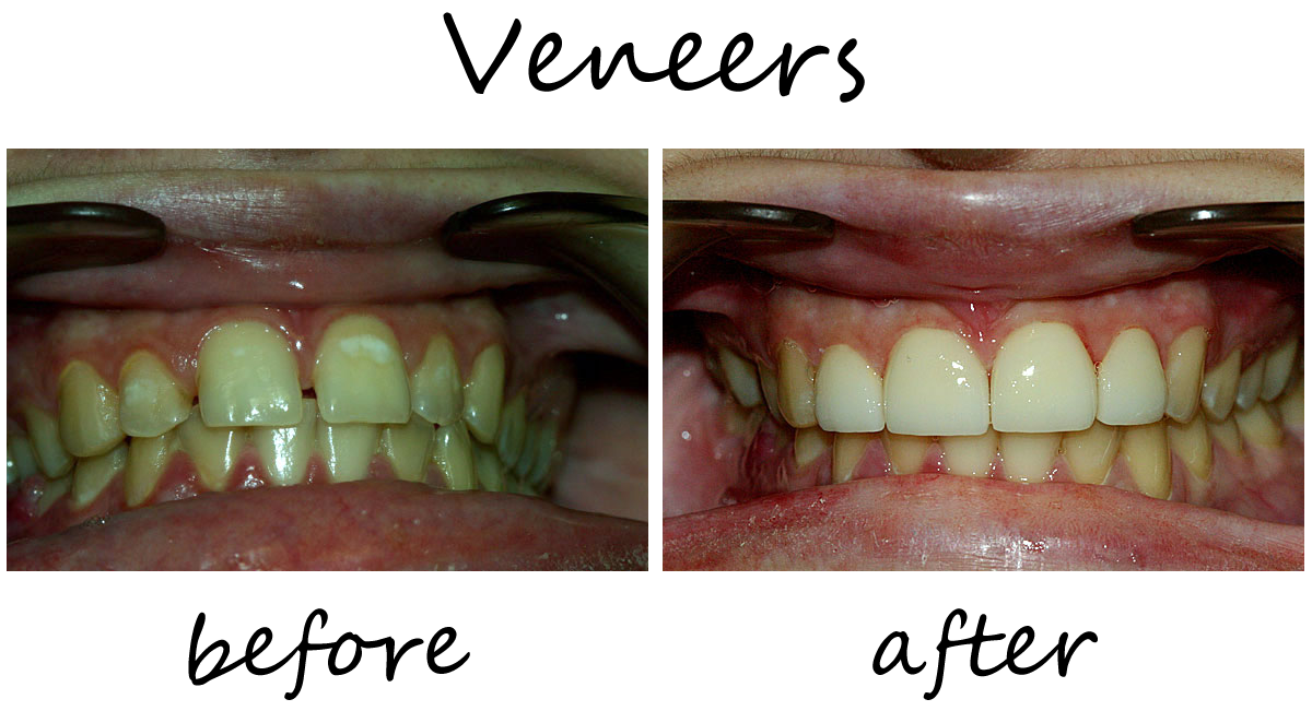 Veneers Before-After 3